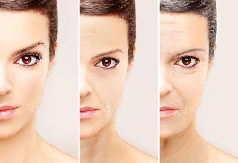 Botox® para tratamiento de arrugas y surcos faciales