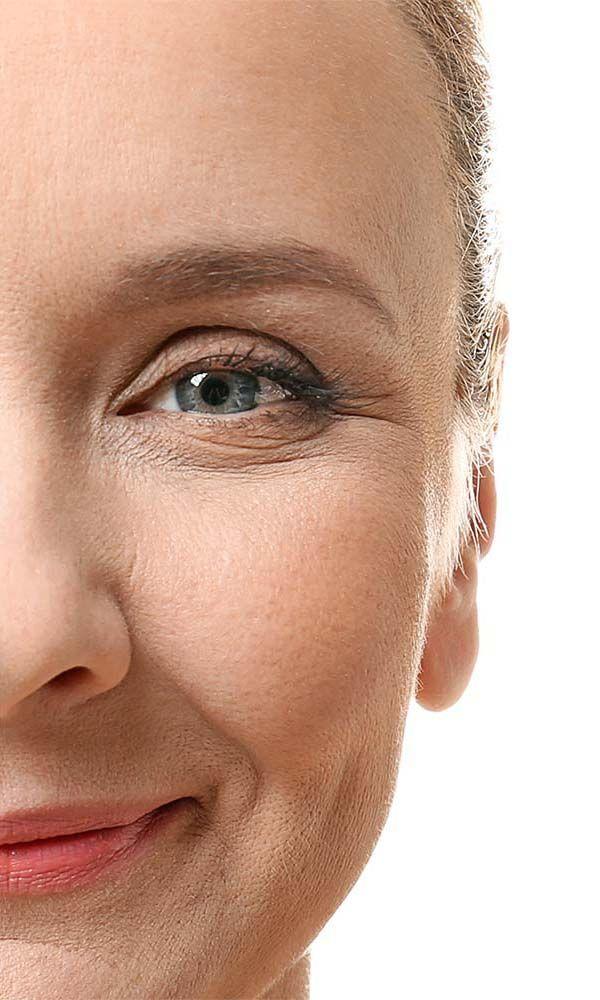 Botox antes