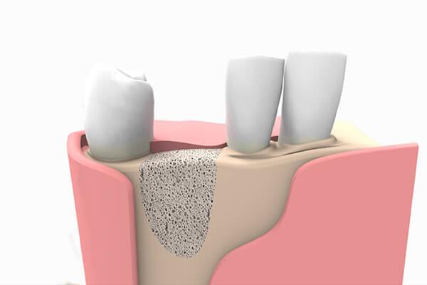 Injertos óseos para implantes dentales