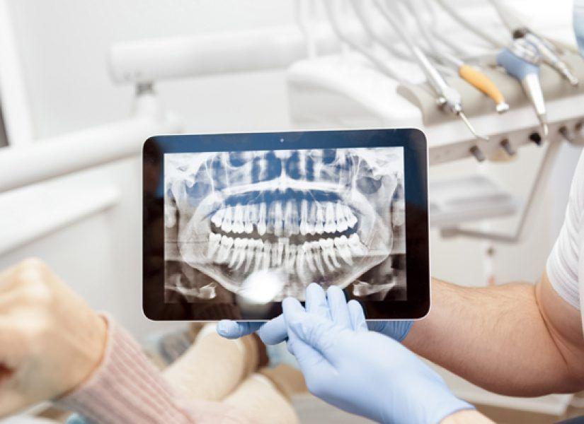 Una ortopantomografía es una técnica radiológica que representa una imagen global en formato panorámico de ambos lados del maxilar, la mandíbula y los dientes y que se realiza en un aparato específico denominado ortopantomógrafo.