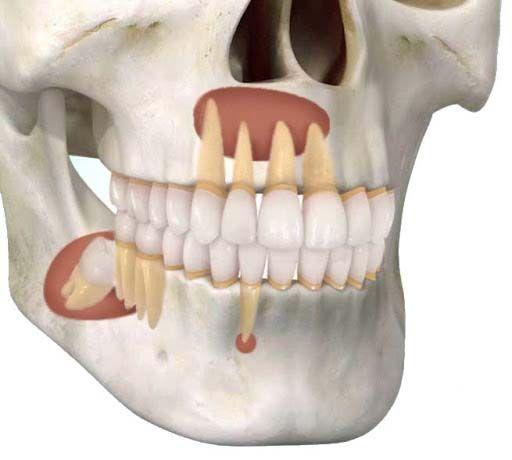 Tumores y Quistes maxilares