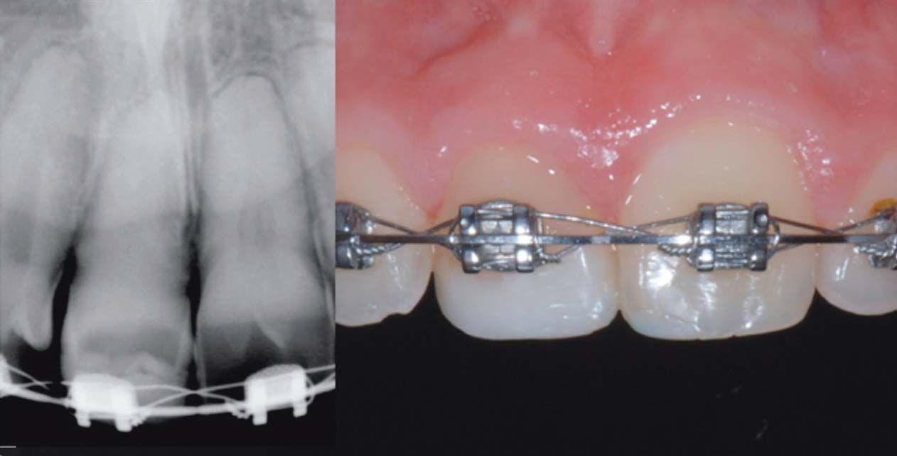 Auto-Trasplantes dentales